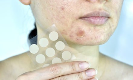 How To Get Rid Of Acne The Korean Way