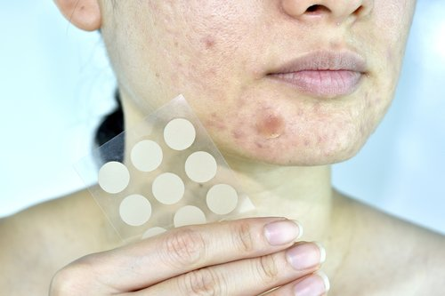how to get rid of acne with pimple patch