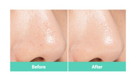 How To Remove Blackheads – Blackhead Removal